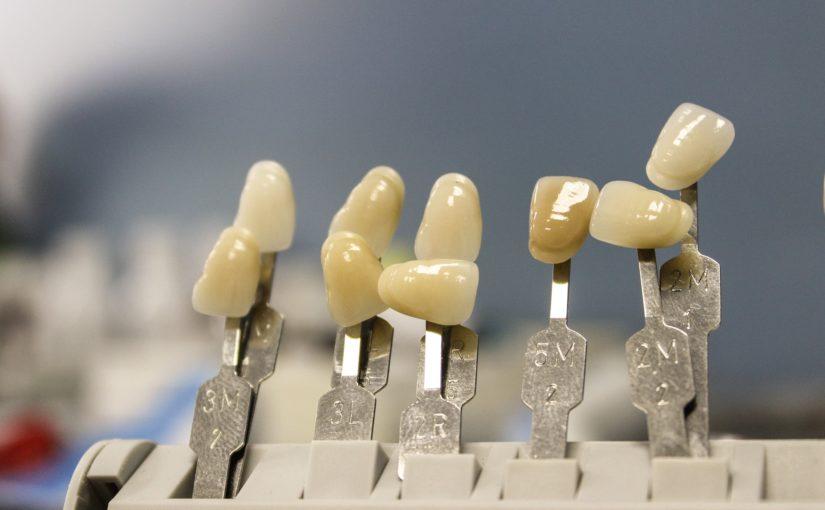 Przepiękne urodziwe zęby oraz niesamowity uroczy uśmiech to powód do dumy.